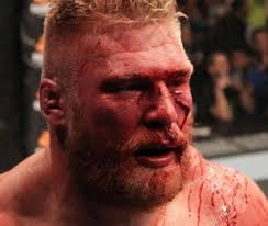 image of Re-dipping the Lesnar